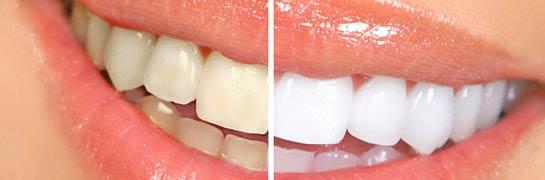 blanchiment de dents à St-Hyacinthe