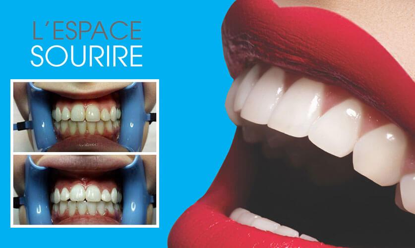espace sourire blanchir les dents